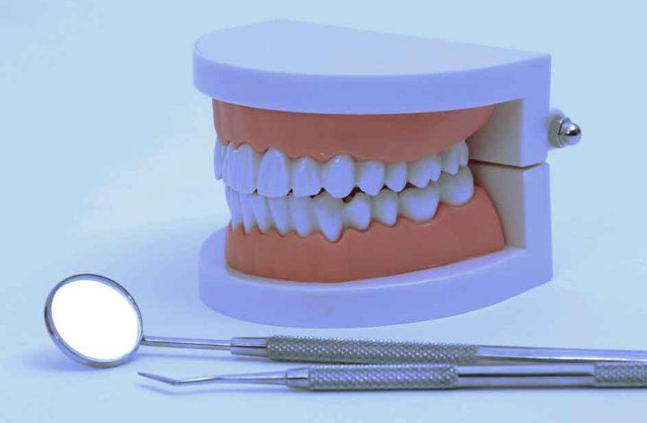 Gebiss und Instrumente beim Zahnarzt