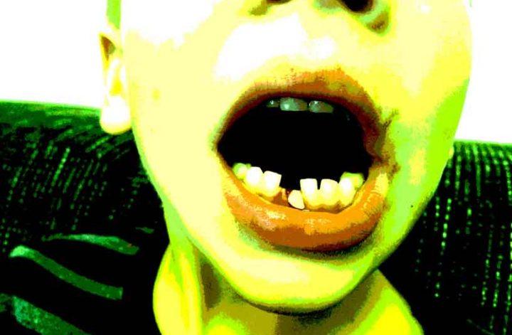 Kindermund mit Zahnlücke